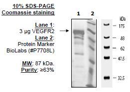 Image of VEGFR2 (KDR)