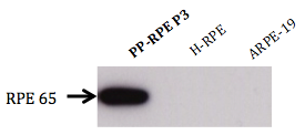 image of PPRPE2